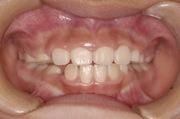 7ヶ月後の歯並び