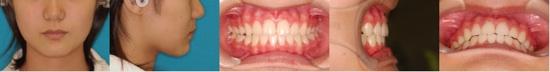 出っ歯After